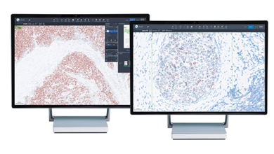 Photo of Roche Launches Digital Tools to Aid Breast Cancer Diagnosis