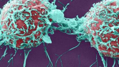 Photo of HTG Molecular DiagnosticsForms New Drug Discovery Business Unit